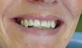 Des dents avant un traitement esthétique