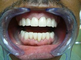 Des dents avec des couronnes en zircone apres les traitements
