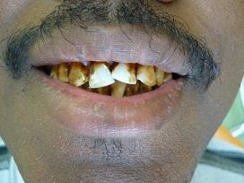 Des dents décolorées avant le traitement