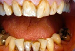 Des dents qui sera corrigées avec des couronnes