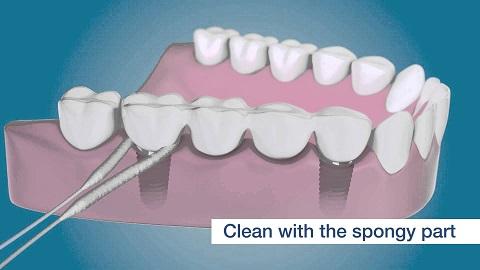 implant-dentaire3-Top-Dentiste-Budapest