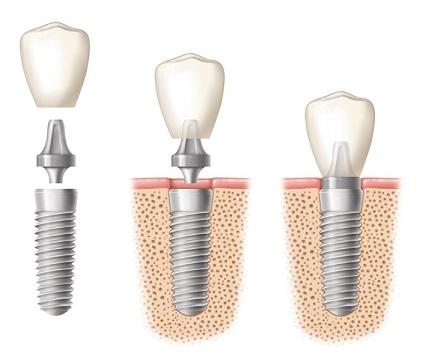 bisphosphonates et extraction dentaire