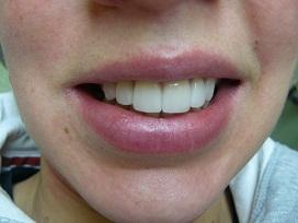 Des dents apres le traitement esthétique