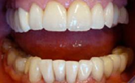 Des dents belles et blanches