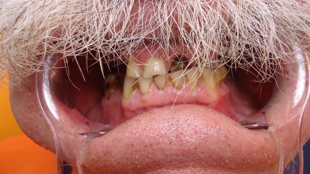 Des dents avant le soin dentaire á Budapest