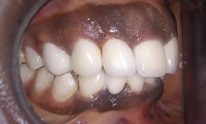 Des dents avec des couronnes en zircone apres le traitement esthétique
