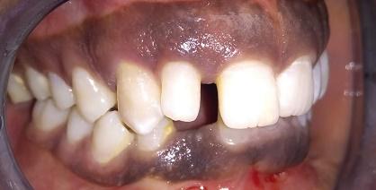 Des dents avant le traitement esthétique