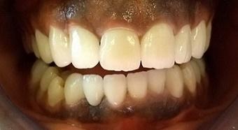 Des dents avec des couronnes en zircone apres le traitement esthétique á Budapest