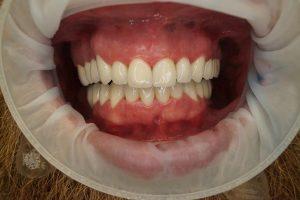 dents avec couronnes en céramique