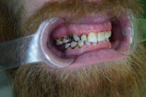 dents usées et décolorées