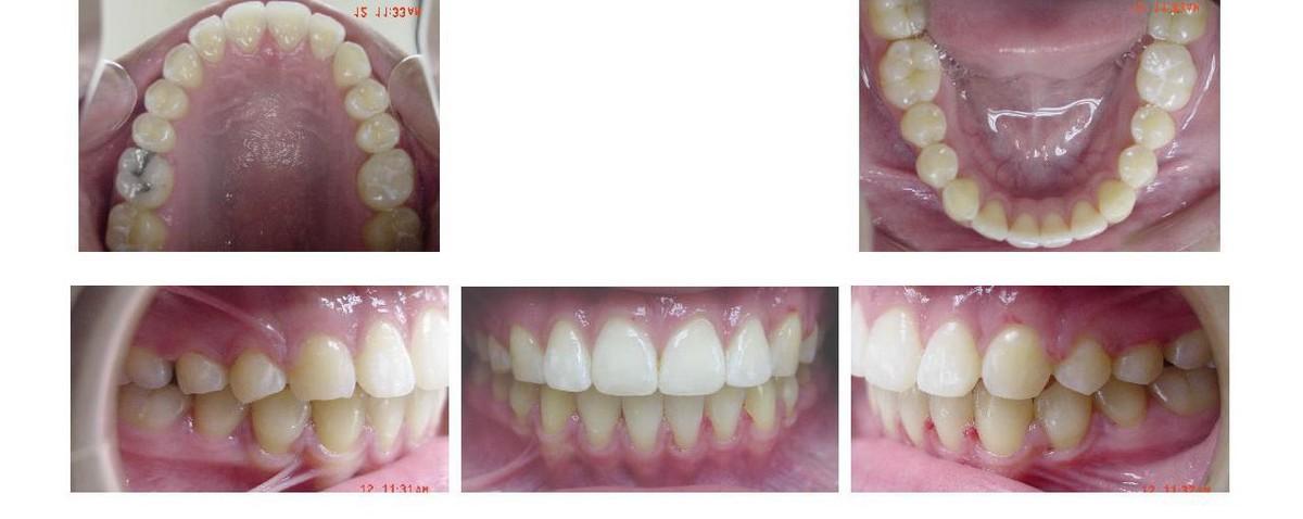 Des photos dont le dentiste a besoin pour un devis en cas d'un traitement cosmétique.