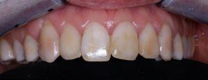 Des dents avant un traitement dentaire esthétique