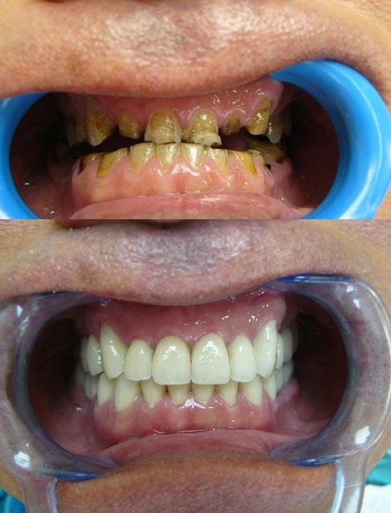 Une image avant-après du traitement de la bridge dentaire en Hongrie