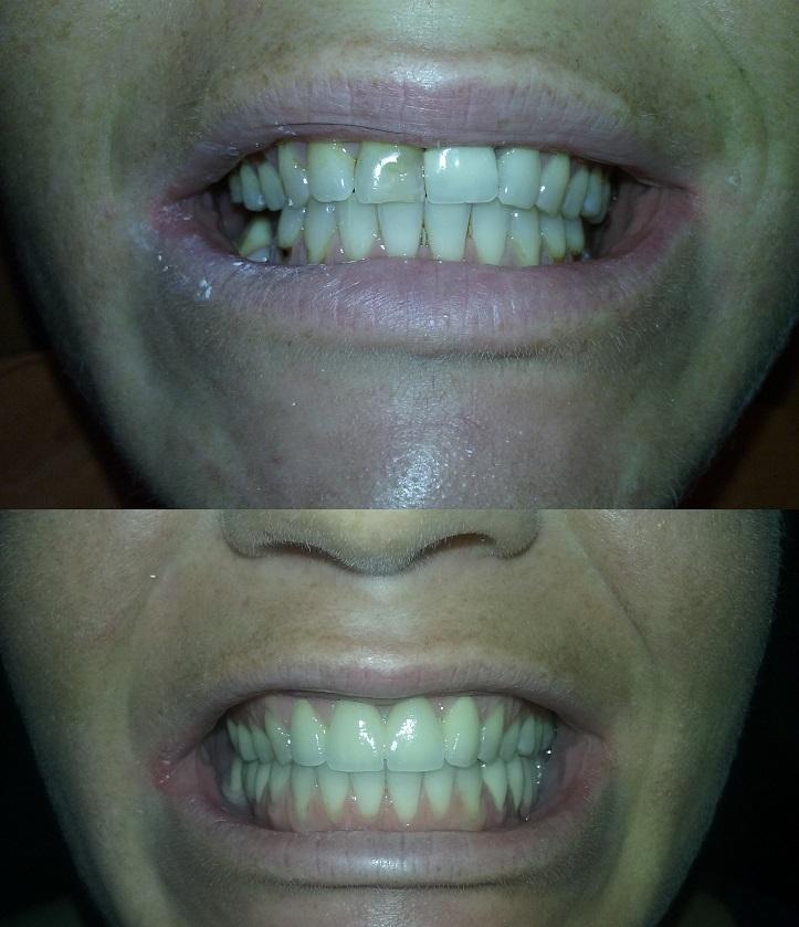 Dents avant et après le traitement des couronnes dentaires en zircon á Budapest
