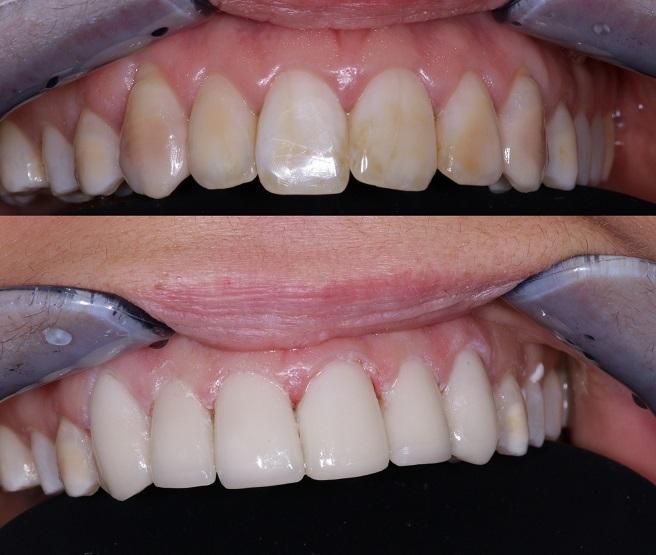 Une image avant-après du traitement de la facette dentaire á Budapest