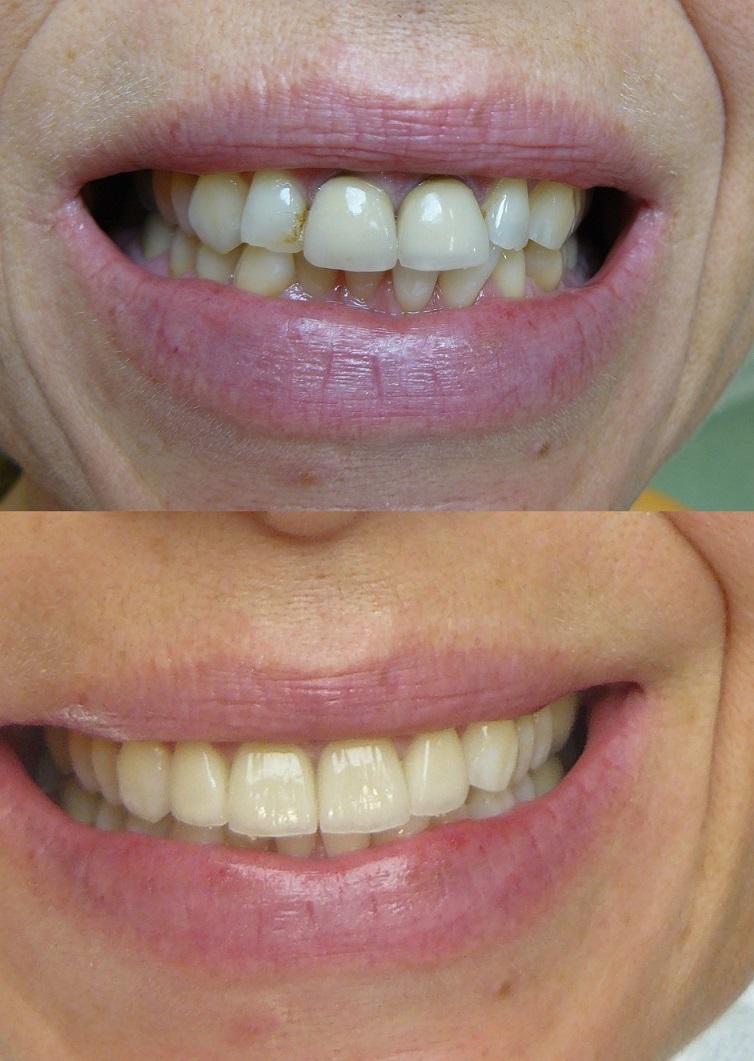 Une image avant-après du traitement de la facette dentaire en Hongrie