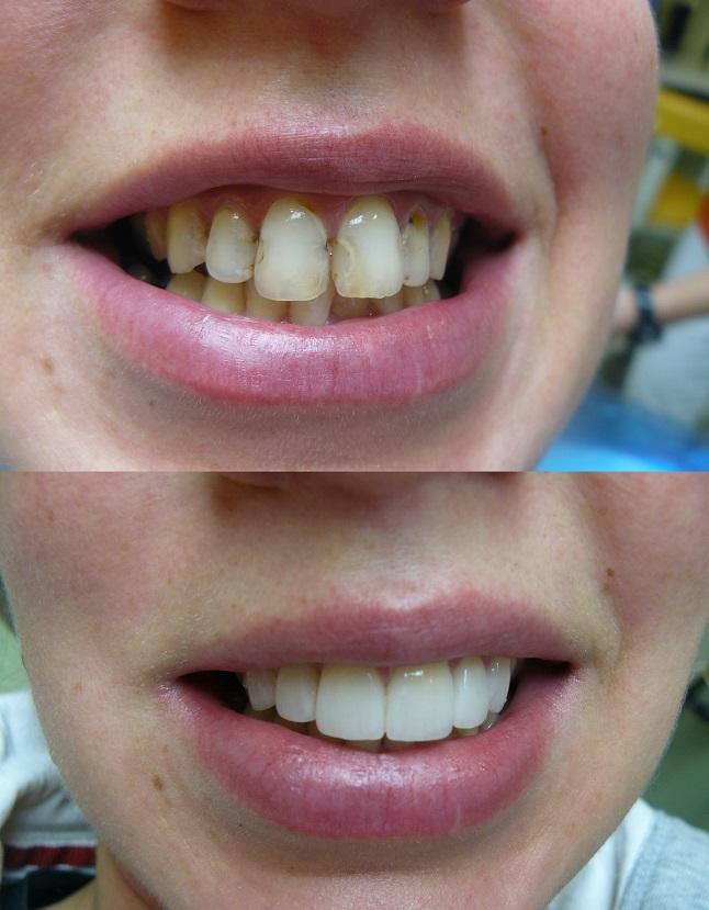 Dents avant et après le traitement des facettes dentaires en Hongrie