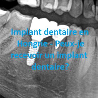 Photo sur un implant dentaire