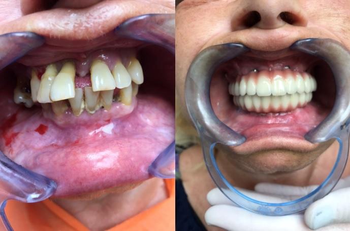 Des photos avant et apres le traitement, All-on-6