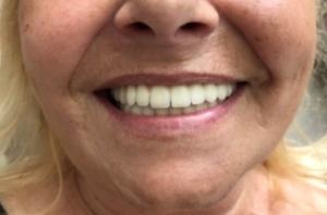 Dents en zircone, All-on-6