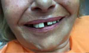 Dents avant de l'extraction, préparation pour All-on-6