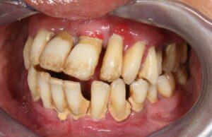 Dents avant de l'extraction, préparation pour All-on-4