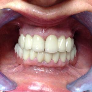 Des dents avec des couronnes en céramo-métallique apres le traitement á Budapest