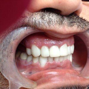 Des dents avec des couronnes en E-max ceramique apres le traitement á Budapest