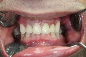 Des dents avec des couronnes en zircone apres le traitement á Budapest