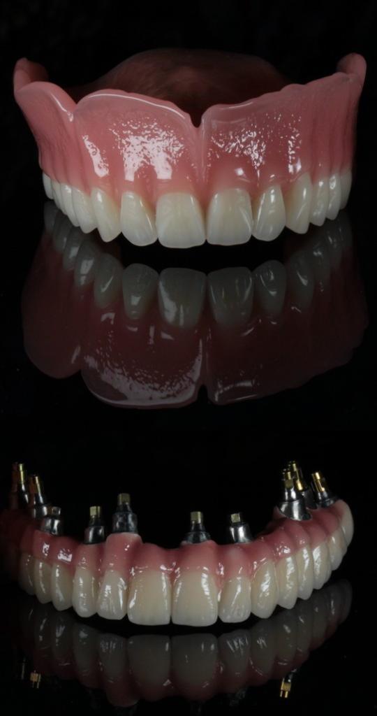 Sur l'image supérieure: prothese amovible, Sur l'image inférieure: All-on bridge complet fixés sur les implants