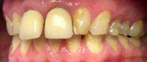 Des dents avant le traitement á Budapest