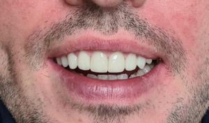 Des dents avec des facettes en zircone apres les traitements