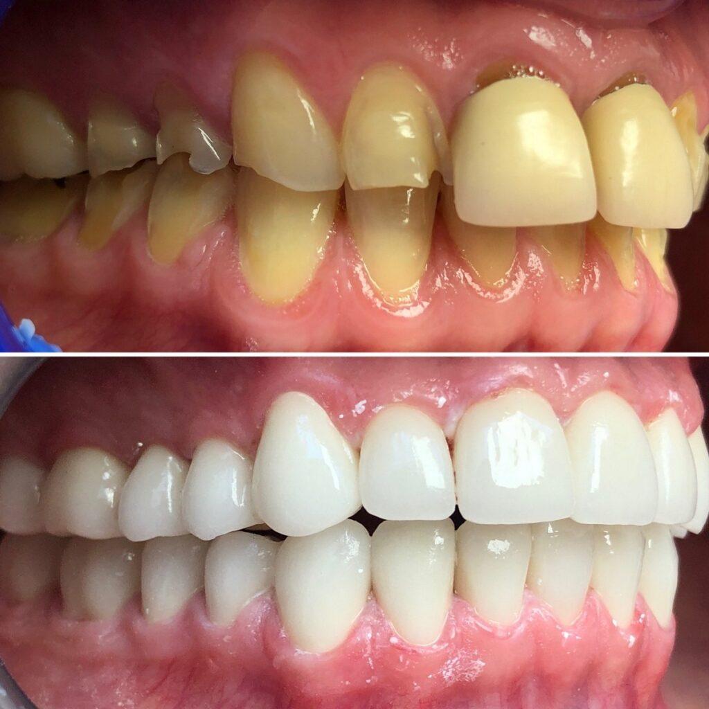 Dents avant et après le traitement des couronnes dentaires en zircon en Hongrie